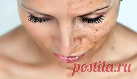 ИЗВЕСТНЫЙ ДЕРМАТОЛОГ ПОКАЗАЛ, КАК ВЫВЕСТИ КОРИЧНЕВЫЕ ПЯТНА НА КОЖЕ ЛИЦА С ЭТИМ ПРОСТЫМ ТРЮКОМ! — SmilePub