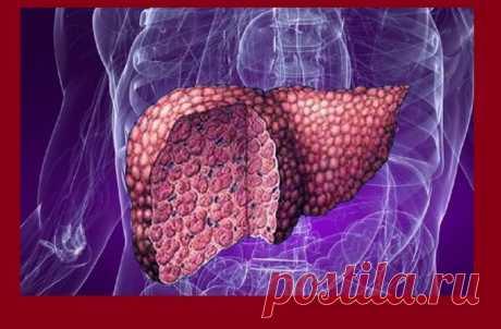 Жировой гепатоз печени: симптомы, которые испытывают при этом заболевании | Жизнь с новой почкой | Яндекс Дзен