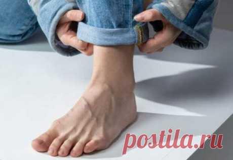 Симптомы возможного диабета в ногах: случаи, когда нужно обращаться к врачу - Будь в форме! - медиаплатформа МирТесен Нижняя часть тела – ноги и ступни – при заболевании диабетом 2 типа становится участком, где могут аккумулироваться симптомы этого недуга.При диабете организм становится инсулинорезистентным или поджелудочная железа вырабатывает гормон инсулин в недостаточном количестве. Как следствие, уровень