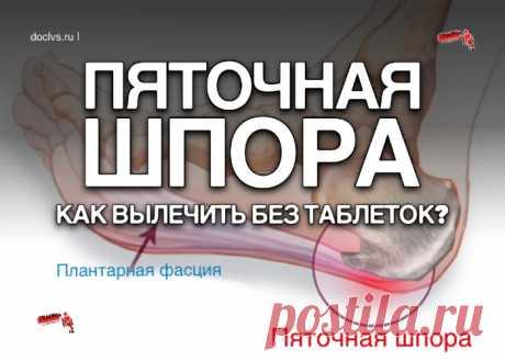 Пяточная шпора или плантарный фасциит: причины и лечение, как вылечить пяточную шпору без таблеток и уколов - ПолонСил.ру - социальная сеть здоровья - медиаплатформа МирТесен