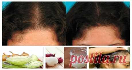 Por qué el jugo de cebolla es extremadamente beneficioso para el crecimiento del cabello – Hoy En Belleza
