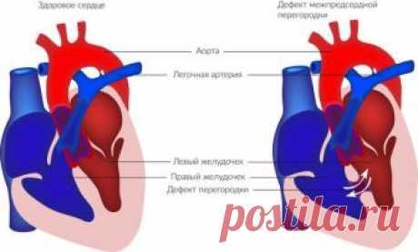Разновидности врожденных и приобретенных пороков сердца   Вашорганизм   Яндекс Дзен