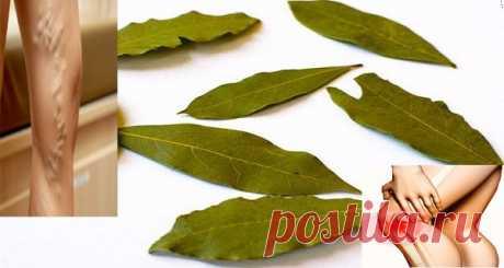 Забудь о варикозе, мигренях, плохой памяти и боли в суставах! Эффект просто потрясающий! Попробуйте это масло уже сегодня!  Все мы знаем, что лавровый лист-это замечательная пряность, которая обладает уникальными способностями в кулинарии. Однако мы не знаем, что эти листья, также используются, как ингредиент в лечение.  Лавровые листья используются для пр
