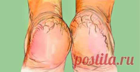 Крем «Безупречные пяточки» приведет в порядок огрубевшую кожу ног! Уже через неделю ваши пяточки забудут о том, что на них были трещины и порадуют вас своим ухоженным видом!