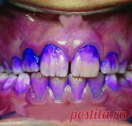Что намазать на зубы, чтобы они не выпали / Geektimes
