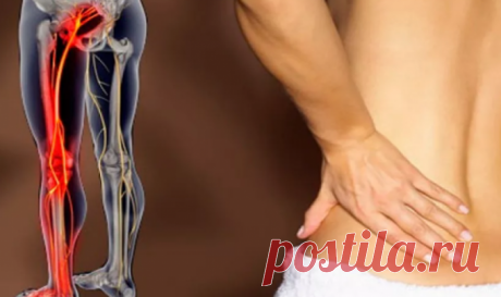 Symptoms and treatment of a sciatic nerve in house conditions \ud83d\udea9 Zabolevaniyaya