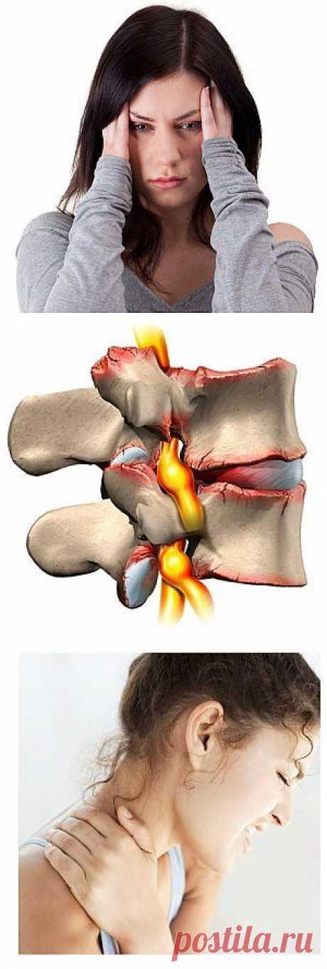 Головные боли при шейном остеохондрозе: симптомы и лечение