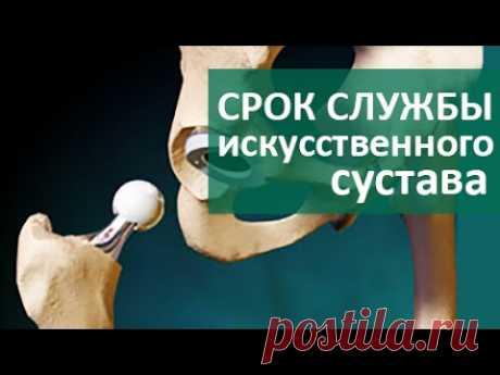 🙆 Эндопротезирование сустава. Срок службы эндопротезированных суставов. ЦЭЛТ.