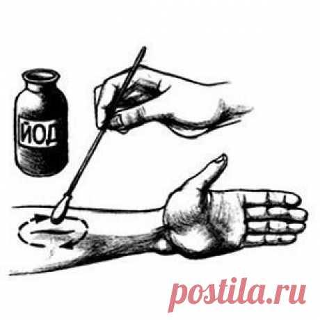 Йодные кольца: простой метод, нормализующий давление | Всегда в форме!
