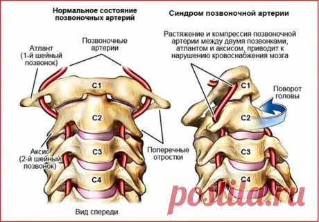 Почему болит и кружится голова при повороте шеи? Синдром позвоночной артерии.Как где лечить?