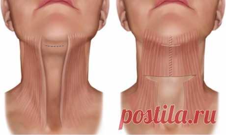 Как подтянуть мышцы шеи и убрать второй подбородок