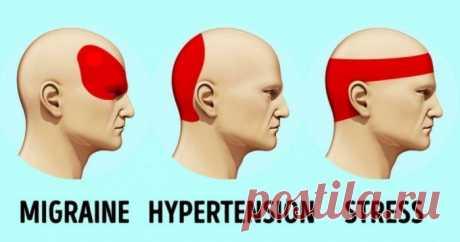 Избавляемся от головной боли без таблеток.