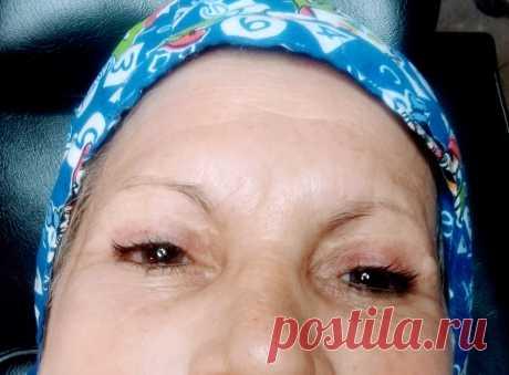 una paciente a la cual ya no le quedan casi cilios en sus cejas, el cambio es estupendo
