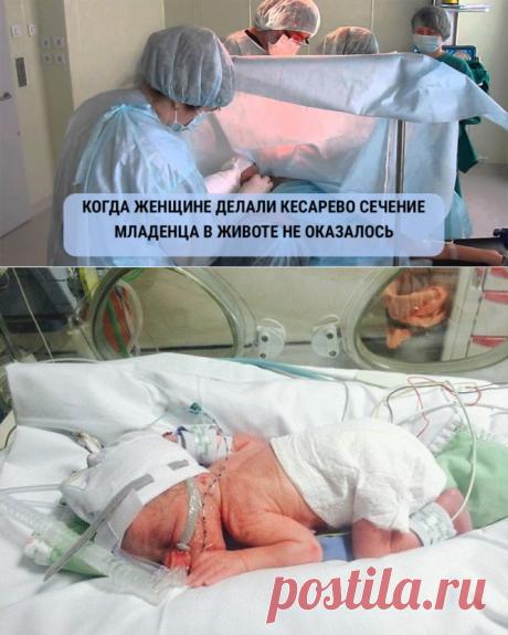 Когда беременной женщине делали кесарево сечение, младенца в животе не оказалось! - Я узнаю