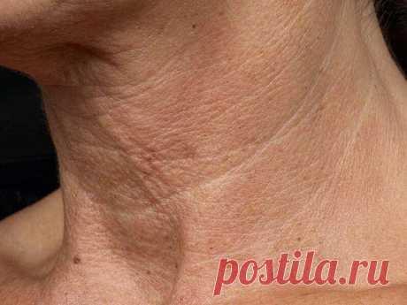 Действенная маска от морщин на шее и в области декольте | Soveti ot Yana Green | Яндекс Дзен