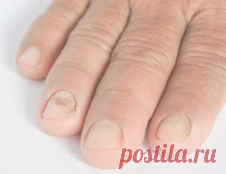 Грибок ногтей антибиотик Антибиотики при грибке ногтей принимаются курсом. Продолжительность его – одна неделя. Затем делается трехнедельный перерыв. Демиктен лак - косметическое, дезинфицирующее средство при грибке ногтей . Противогрибковые антибиотики системного действия.