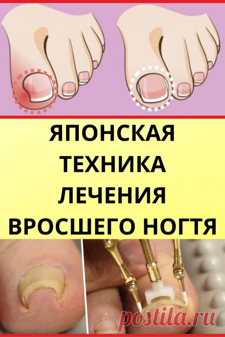 Японская техника лечения вросшего ногтя