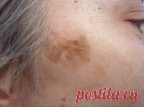 Маска от веснушек и возрастных пятен на лице | Подружки
