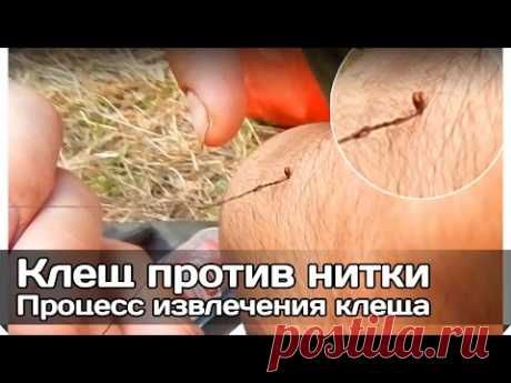 [RV] Extraction of a tick thread (sting of a tick in the spring and his removal by a thread)