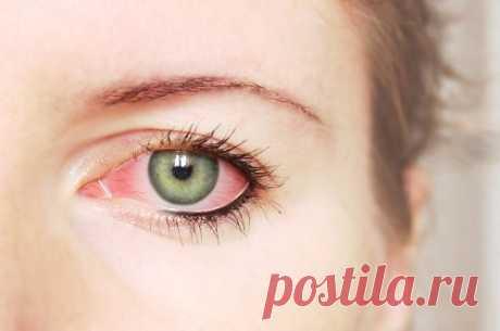 Красные глаза после сна: почему и что делать? — СОВЕТ !!!