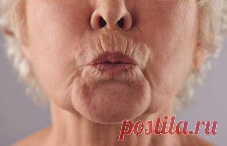 Кисетные морщины вокруг губ: как убрать и почему возникают, средства коррекции кисетных морщин над верхней губой / Mama66.ru Кисетные морщины – это возрастные вертикальные складочки, направленные перпендикулярно кайме губ. Избавиться от таких морщин в области рта на раннем этапе помогает домашний уход и аптечная косметика, затем требуются услуги профессионалов - салонные процедуры, инъекции и аппаратные техники омоложения кожи.