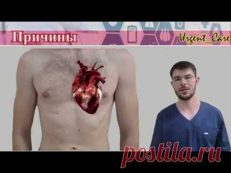 Инфаркт миокарда. Первая помощь и алгоритм действий.