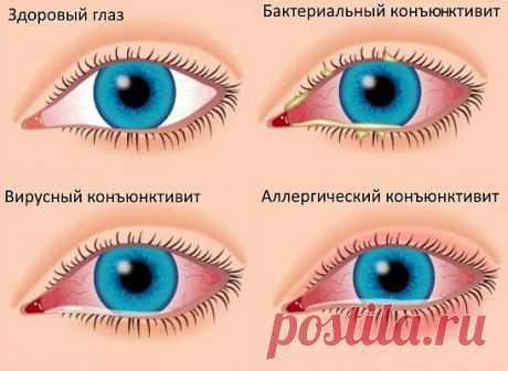 Воспалительные заболевания глаз...