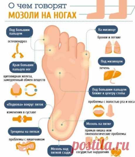 Диагностика и лечение мозолей и натоптышей на ногах