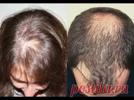 #облысение #ВыпадениеВолос #РостВолос При облысении многих волнует вопрос: как вырастить волосы? Некоторые аптечные средства направлены на стимулирование мик...