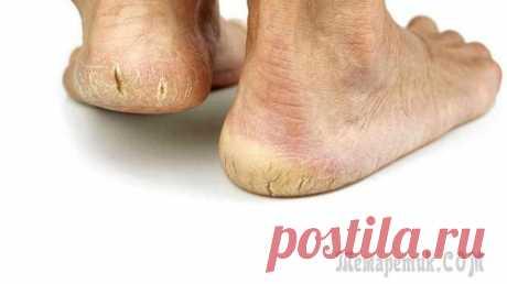 Быстро и без затрат вылечить грибок ног Интереснейший способ вылечить грибок ног. Способ настолько простой, что можно засомневаться в том, что он работает.Ни нужно ничего покупать, не нужны никакие лекарства, а нужно просто рано встать и в ...