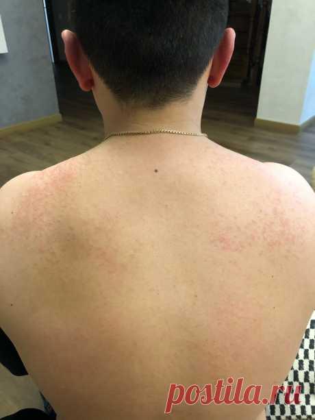 Небольшая сыпь на спине и груди - Блог Фармацевта Здравствуйте, такой вопрос, у меня на спине небольшая сыпь, начинает чисаться туловище и голава когда я начинаю потеть, чешиться около 10 мин и потом