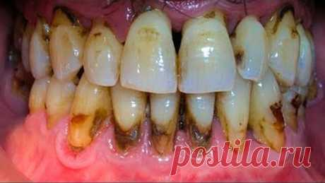 Удалите ЗУБНОЙ КАМЕНЬ за 2 Дня! Когда вы Увидите этот МЕТОД, вы будете сердиться на стоматолога...