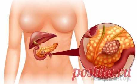 Рак поджелудочной железы – симптомы, признаки