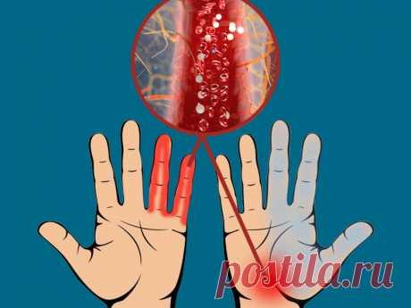 Неочевидные признаки нарушения кровообращения, к которым стоит прислушаться Неправильное питание, ожирение, гиподинамия – основные причины нарушения циркуляции крови в организме. Снижение кровообращения приводит к обострению хронических заболеваний, ухудшает питание...