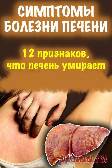 Заболевания печени, кроме всего прочего — это зуд, сыпь на коже и сыпь на спине, вздутие, постоянное чувство усталости, и даже цирроз печени. О том, что ей пора помочь, расскажут симптомы болезни печени. Узнавайте, беритесь за лечение печени, и пусть ваше здоровье всегда будет на высоте!