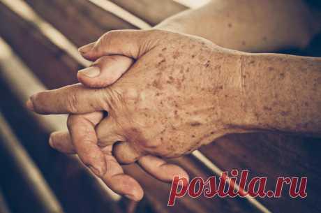 Простой способ быстро устранить пигментные пятна на коже