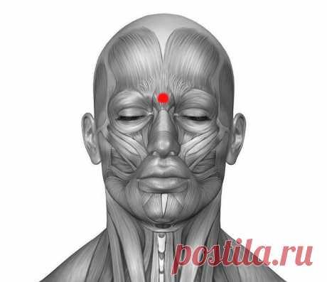 La técnica del levantamiento del dolor de cabeza y la jaqueca