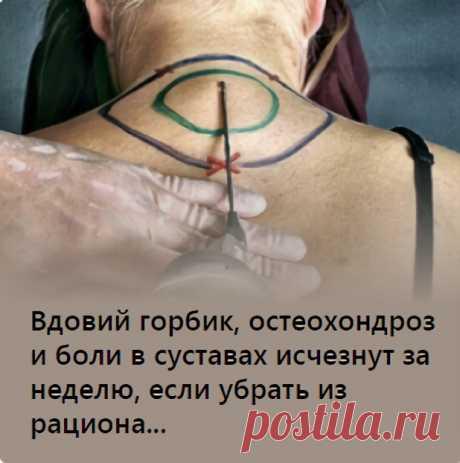 Вдовий горбик, остеохондроз и боли в суставах исчезнут за неделю, если убрать из рациона...