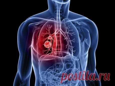 Дают ли инвалидность при бронхиальной астме: пакеты документов на инвалидность, правила их заполнения и подачи В статье разберемся, дают ли инвалидность при бронхиальной астме. Это заболевание, которое входит в десятку наиболее распространенных патологий. Данному недугу подвержено примерно 10 % всего населения...