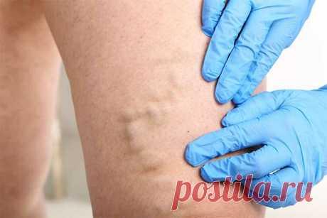 Традиционно флебэктомия относится к чистым операциям Варикозное расширение вен в отдельных случаях может протекать бессимптомно. Женщины, как правило, чаще страдают варикозным расширением вен и чаще проходят лечение, и не только по эстетическим причинам. Хотя патогенез варикозного расширения вен до конца не изучен, удаление патологического рефлюкса представляется крайне важным для успешного... Читай дальше на сайте. Жми подробнее ➡