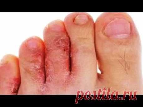 Трихофитон рубрум ногтей лечение  Трихофитон рубрум (Trichophyton rubrum) – ногтевые пластины тускнеют, покрываются полосами и желтыми пятнами. Кожа стоп и пальцев утолщается, на ней появляются трещины. Trichophyton mentagrophytes – поверхность ногтя становится неровной, утолщается