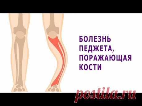 Болезнь Педжета, поражающая кости