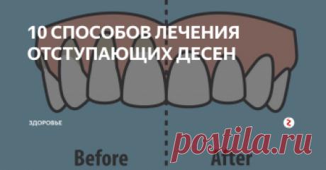 10  СПОСОБОВ ЛЕЧЕНИЯ ОТСТУПАЮЩИХ ДЕСЕН 10 легких способов исцеления отступающих десен Рецессия десен - это медицинский термин, описывающий, когда край ткани десны, окружающий зуб, отступает назад, подвергая большему количеству зуба или его корня. Отступающие десны могут вызывать заметные промежутки, что облегчает накопление бактерий, вызывающих болезни. Если их не лечить, поддерживающие ткани и костные структуры зубов могут быть сильно