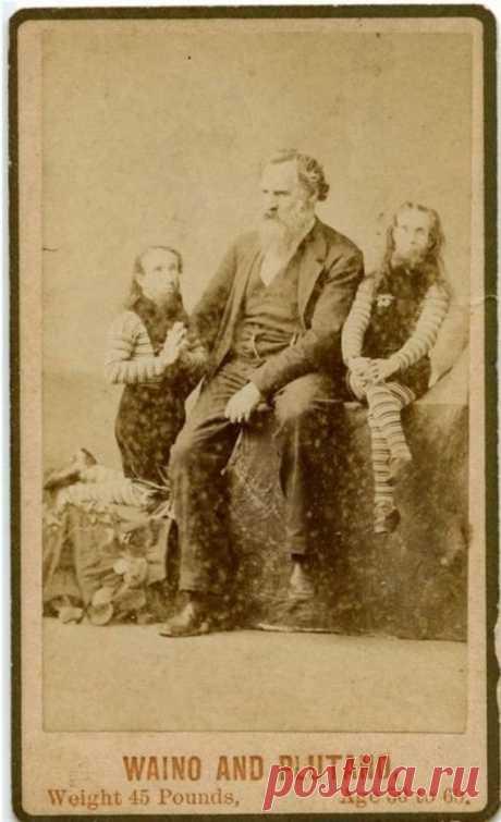 Фрики из цирка прошлого | ОПТИМИСТ