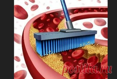 Статины для снижения холестерина: лучшие препараты, таблетки, названия  Самые лучшие статины для снижения в крови уровня холестерина, названия таблеток. Хорошие и дешевые препараты какие снижают холестерин, список, природные