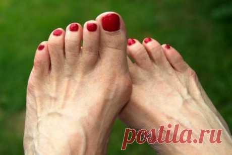 Как избавиться от «шишки» на большом пальце стопы народными средствами  Деформация первого пальца стопы обычно связана с генетической предрасположенностью или же с частым ношением неудобной обуви. Среди натуральных средств для лечения заболевания можно выделить использов…