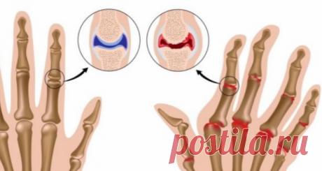 Лечение артрита с помощью народных средств - медиаплатформа МирТесен