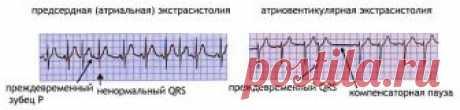 Экстрасистолы в сердце (экстрасистолия): виды, причины, симптомы