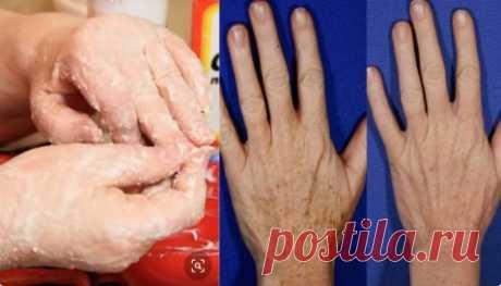«Шипучка» для рук: в любом возрасте средство омолаживает и убирает пигментные пятна с рук — СОВЕТ !!!