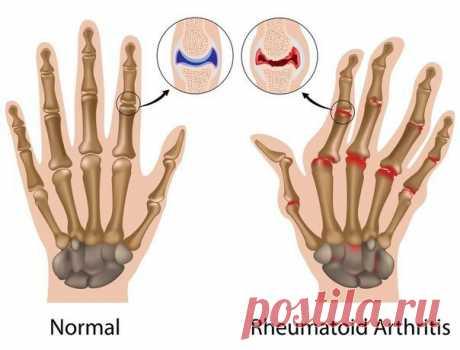 Гимнастика при артрите пальцев рук Гимнастика— одно из средств лечения Несмотря на развитие медицинских технологий и появление новых препаратов гимнастика при артрите пальцев рук остается важным и достаточно эффективным методом лечения этого заболевания. Задачи гимнастики— …